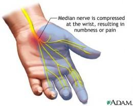 Nerve involvement in Sjogren's